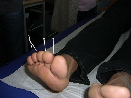 Akupunktur nach einer Verletzung beim Laufen